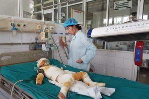 Sức khỏe 3 trẻ bị bỏng nặng vụ cô giáo dùng cồn dạy PCCC
