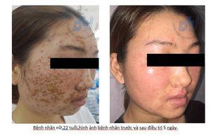 Dùng sữa rửa mặt quảng cáo online, bệnh nhân bị bội nhiễm da nặng