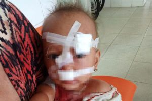 Xảy ra cãi vã với vợ, chồng dùng vật cứng ném trúng mặt con gái 2 tuổi phải khâu 12 mũi