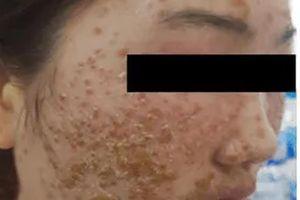 Nhập viện vì đẹp da bằng loại bột quảng cáo trên mạng