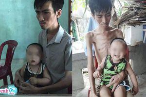 Mặc bệnh hiểm nghèo chỉ còn 38 kg, người cha vẫn cố duy trì sự sống để chờ hiến thận cho con