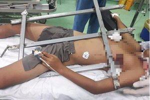 Bé trai 13 tuổi ở Nghệ An bị mũi sắt nhọn hàng rào đâm xuyên ngực