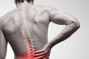 Những thực phẩm cần tránh xa nếu bị đau lưng