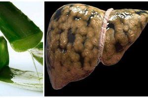 Gan nhiễm mỡ mấy năm cũng khỏi tiệt nhờ áp dụng bài thuốc rẻ tiền từ cây nha đam theo cách này