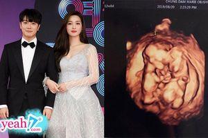 Tin vui hiếm hoi của Kpop 2019: Cặp vợ chồng đáng ngưỡng mộ Minhwan và Yulhee thông báo mang thai song sinh