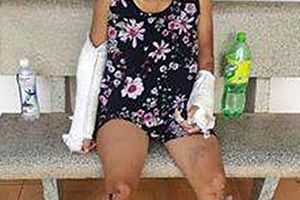 Gã chồng đánh vợ bầu 7 tháng đến gãy tay chân đã bỏ trốn