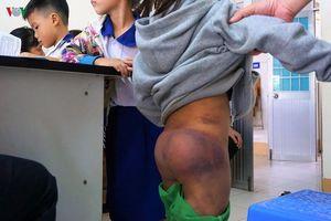 Điều tra vụ 4 học sinh Tiểu học ở Cà Mau đến lớp với nhiều vết bầm tím