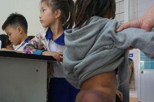 4 học sinh bị bạo hành ở Cà Mau: Hư thì ông nội đánh là chuyện thường?