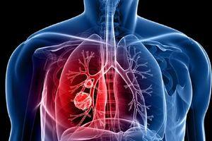 Phát hiện ung thư phổi chỉ trong 6 phút nhờ kiểm tra hơi thở