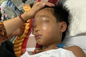 Tin mới nhất về sức khỏe bé trai bị chú chém lìa tay ở Bắc Giang