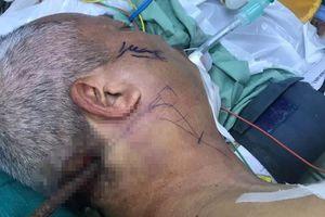 Cứu sống người đàn ông bị thanh sắt găm vào đầu