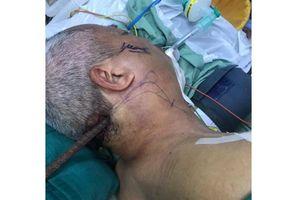 Phẫu thuật thành công nạn nhân bị cây sắt lớn đâm xuyên từ cổ đến xương hàm