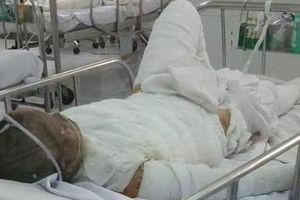 2 người tử vong trong vụ chồng thiêu vợ, thai nhi may mắn được cứu sống