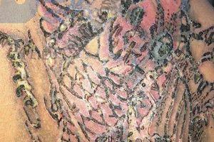 Xóa hình xăm, nam thanh niên bị nhiễm trùng da nghiêm trọng