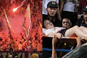 Cổ động viên bắn pháo sáng trên sân Hàng Đẫy khiến cô gái bị thương có thể bị xử lý hình sự?