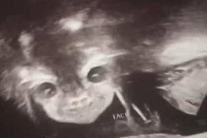 Đi siêu âm, mẹ hết hồn khi thấy hình ảnh con nhìn chằm chằm vào mình