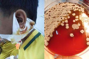 Nghệ An: Phát hiện 3 cháu bé bị nhiễm vi khuẩn ăn thịt người
