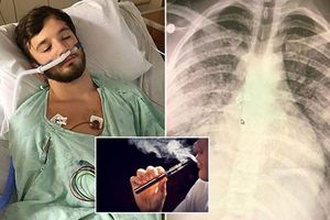 Hút thuốc lá điện tử suốt 18 tháng, lá phổi của thanh niên 'không khác gì người 70 tuổi'