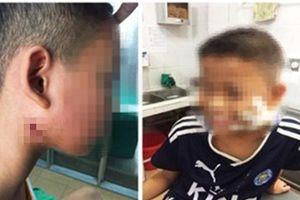 Nghệ An: Phát hiện 3 cháu bé nhiễm 'vi khuẩn ăn thịt người'
