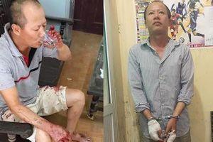 Ra tay thảm sát người thân: Khi con người đã hành động như một... dã thú!