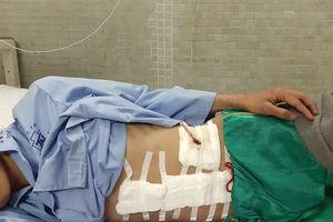Vừa vào TP HCM tìm việc sau bão lũ, chàng trai miền Trung mất cả lách tụy