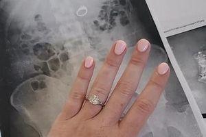 Lo bị mất cắp, cô dâu nuốt nhẫn kim cương khi ngủ mơ