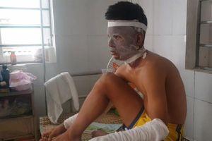 Chùm bóng bay phát nổ, 3 cầu thủ U-14 Sông Lam Nghệ An cấp cứu