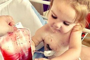 Cô bé 2 tuổi mắc bệnh lạ chỉ có thể sống nhờ máu người khác