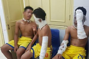 Nổ chùm bóng bay, 3 cầu thủ Sông Lam Nghệ An bị bỏng nặng