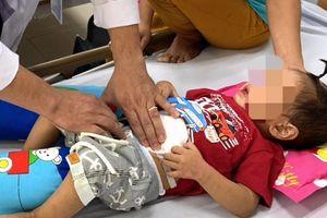 Cắt bỏ khối u nặng gần 500 gram ở vùng bụng dưới cháu bé 2 tuổi