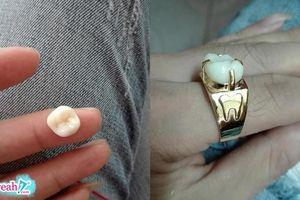 Ngủ mơ gọi tên người yêu cũ, chồng bị vợ tát rụng răng rồi mang đi làm nhẫn đeo dằn mặt