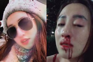 Vợ xinh bị chồng đánh gãy mũi ở TP HCM: nên 'oánh' trả... còn không, ly hôn?