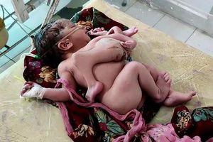 Em bé sinh ra với 4 chân, 3 tay ở Ấn Độ