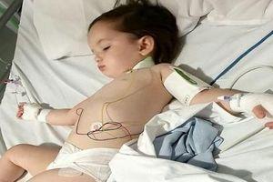 Bé gái 2 tuổi suýt tử vong vì nuốt phải pin cúc