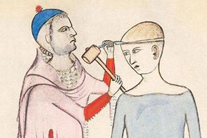 Hãi hùng kỹ thuật khoan hộp sọ của người cổ đại