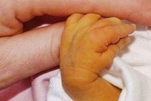 Gia đình chủ quan, bé 7 ngày tuổi phải thay máu