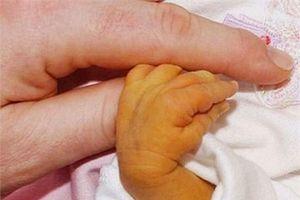 Chỉ vì lý do không thể ngờ tới, bé 7 ngày tuổi phải thay máu, tiên lượng nặng