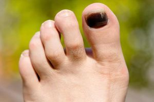 Móng chân chuyển đen bất thường là dấu hiệu của bệnh gì?