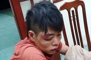 Hà Nội: Công an truy bắt đối tượng trong vụ trộm chó, chém người ở Quốc Oai