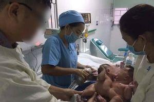 Tách dính cặp song sinh nhỏ nhất từ trước tới nay tại bệnh viện Nhi đồng 1