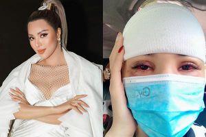 Bị kệ rơi trúng đầu, siêu mẫu Khả Trang phải khâu 10 mũi