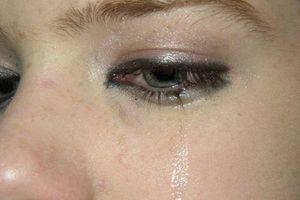 Bác sĩ nêu 7 dấu hiệu lạ ở mắt cảnh báo sức khỏe không thể xem thường