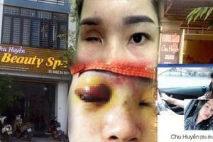 Spa Chu Huyền nói gì khi làm mù mắt cô gái trẻ tiêm filler nâng mũi?