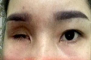 Tiệm spa nâng mũi khiến cô gái bị mù vĩnh viễn từng bị đình chỉ hoạt động