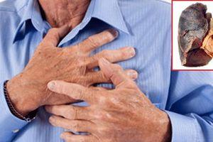 Đừng coi thường: Dù không ho nhưng vẫn có thể mắc ung thư phổi