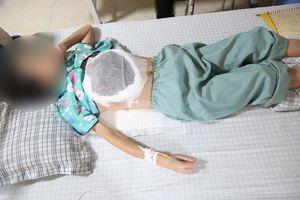 14 năm đắp thuốc lá, nữ bệnh nhân mắc u vú phát triển 4kg
