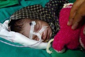 'Phép thần kỳ' đến với bé sơ sinh ở Ấn Độ