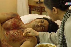 Thị Bình khóc khi nhìn vết thương lở loét của con trai