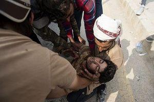 Chùm ảnh Mỹ thất thế trên chiến trường Syria, đồng minh bị dọa chặt đầu