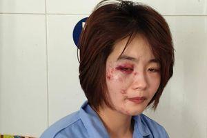 Nữ nhân viên buýt hoảng sợ kể lúc bị 4 thanh niên xăm trổ đánh bầm dập